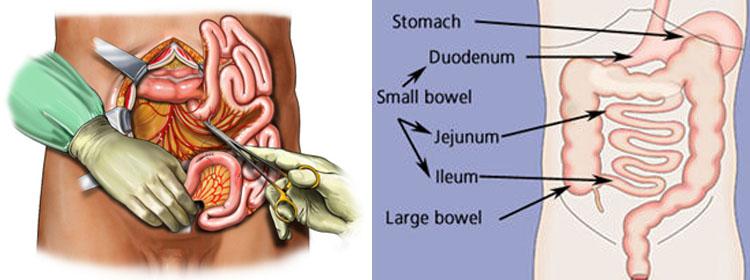 Small Intestine Cancer Surgery In Chennai Small Bowel Obstruction